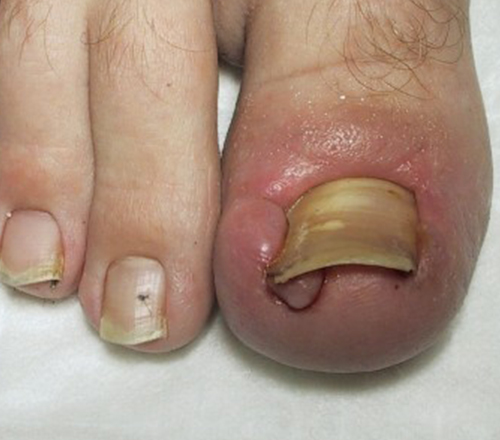 Ingrown Toenails - Atlanta Foot Care Center